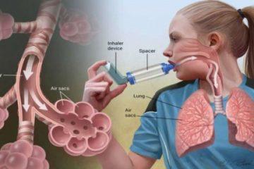 پاورپوینت آسم در کودکانو تاثیر ورزش بر آن  تعداد20اسلاید