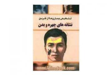تشخیص بیماری ها از طریق نشانه های چهره وبدن