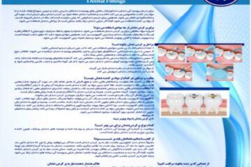 پوستر پر کردن دندان- مجموعه پوسترهای دندانپزشکی