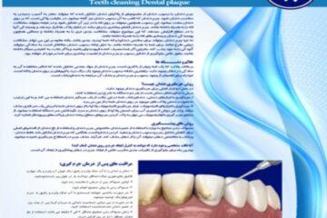 پوستر جرم گیری دندان- مجموعه پوسترهای دندانپزشکی
