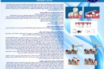 پوستر روکش دندان- مجموعه پوسترهای دندانپزشکی
