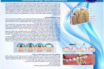 پوستر عصب کشی دندان- مجموعه پوسترهای دندانپزشکی